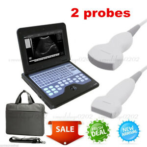 Portable Full Digital Laptop Ultrasound Scanner Machine Convex