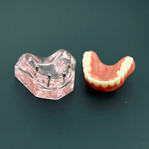 Dental Overdenture Superior With 4 Implants Demo Model 6001 01 Study Model