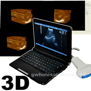 Top 3d Laptop Mobile Ultrasound Machine Scanner Diagnostic System Convex Probe