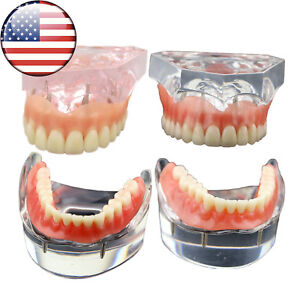 Us Dental Study Teach Overdenture Inferior With 2 4 Implant Demo Upper Lower