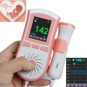 Us Pocket Fetal Doppler Prenatal Baby Heart Beat Fetal Monitor 2mhz Probe Memory