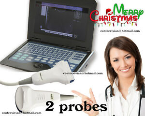 Portable Digital Ultrasound Scanner System Laptop Machine convex linear 2 Probes