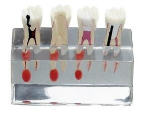 Dental 4 stage Endodontic Treatment Teeth Model For Studying Or Teaching New