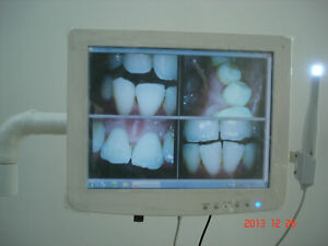 Dental Touch Screen Capacitive Monitor With Intraoral Camera Built In Intel Best