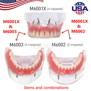 3sizes Dental Implant Teeth Model Demo Overdenture Restoration With Implants U l