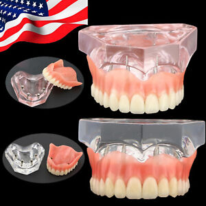 Usa Stock Dental Study Teeth Model Overdenture Superior 4 Implants Pink Clear