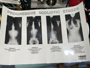 Progressive Scoliotic Stages Advance Chiropractic Research Poster