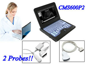 Portable Digital Ultrasound Scanner Diagnostic Laptop Machine 2 Probes Cms600p2