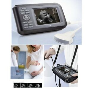 Medical Diagnostic Ultrasound Machine Scanner Convex Probe Pregnancy Baby Scan