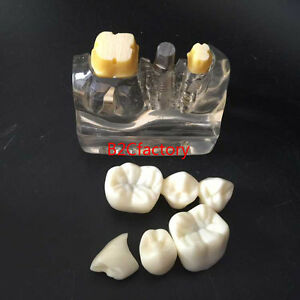 Dental Implant Analysis Crown Bridge Demonstration Teeth Model Clear