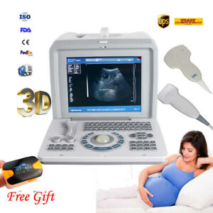 3d Portable Ultrasound Machine Scanner Medical Clinic Equipment Convex Linear