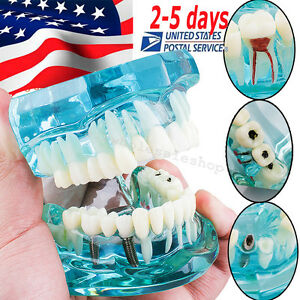 Dental Implant Disease Study Tooth Teeth Model Bridge Restoration Dentist usa
