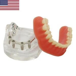 Usa Dental Overdenture Typodont Model Inferior Precision Implant Silver Bar 6008