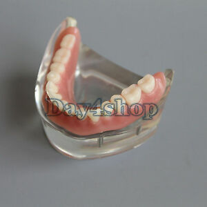 New Dental Teeth Study Model 4 Implant Overdenture Inferior Demo Model 6002 02