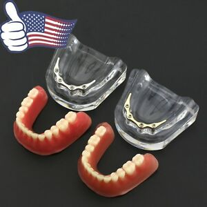 Us Dental Lower Jaw Precision Implant Typodont Overdenture Teeth Model 6008 6009