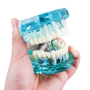 5 Pcs Dental Study Teeth Model Transparent Pathological Disease Tooth Dentistry