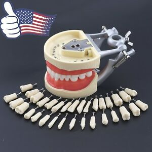 Dental Typodont Teeth Model Fit Kilgore Nissin 200 Upper Lower Replacement Tooth