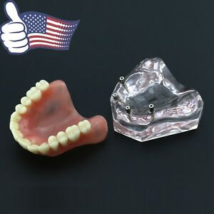 Us Dental Upper Jaw Implant Overdenture Typodont Teeth Model Superior Teeth 6001