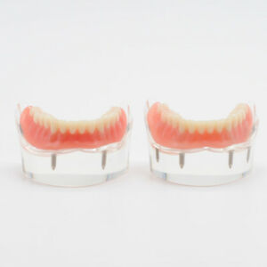 Lower Mandibular With 2 4 Implants Restoration Teach Model For Dental Study