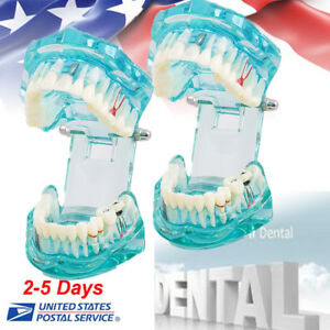 2 dental Study Modle Adult Standard Typodont Demonstration Teeth Transparent Usa