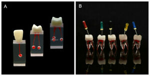 Dental Implant Orthodontic Periodontal Disease Anatomical Caries Study Model 1