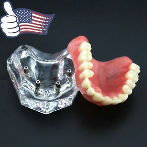 Us Dental Overdenture Implant Typodont Teeth Model Acrylic Upper Jaw Clear