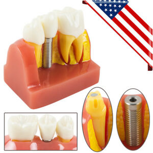 Implant Analysis Crown Bridge Dental Teeth Teaching Model Removable Tooth Model