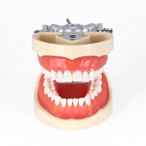 Kilgore Nissin 200 Type Dental Typodont Model With Removable Teeth M8012
