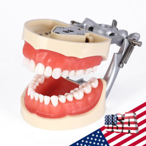 Usps Kilgore Nissin 200 Type Dental Practice Typodont Teeth Model Replace Tooth