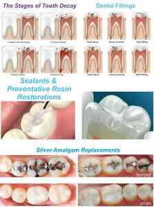Dental Education Poster Sealants And Preventative Resin Restorations 24 x36