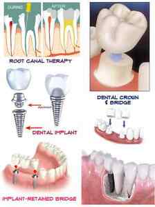 Dental Education Poster Endodontic Root Canal Bridge Crown Impant 24 x36