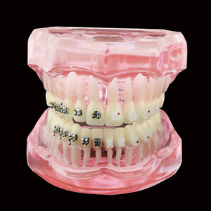 Dental Orthodontic Teeth Model Metal And Ceramic Bracket Braces Study Model 3003