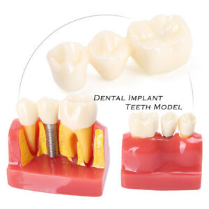 1x Dental Implant Analysis Crown Bridge Demonstration Teeth Teaching Study Model