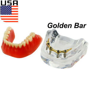 Usa Dental Implant Teeth Model Overdenture Restoration 4 Impalnts Golden Bar