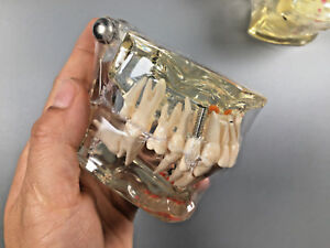 Denture Miss Extension Molar Teeth Model Dental Study Implant Root Canal Caries