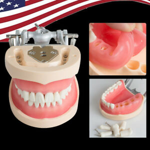 Us Dental Universal Adult Removable Teeth Tooth Model Replacement Teeth Practice