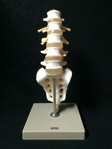 Vintage Somso Qs64 Lumbar Vertebral Column Anatomical Spine Model qs 64
