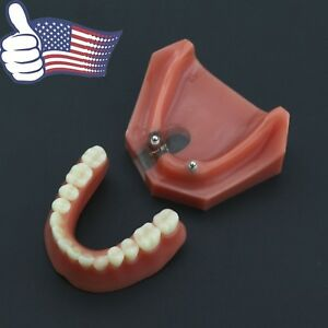 Usa Dental Implant Overdenture Model 2 Implants Lower Jaw Typodont Teeth 6007