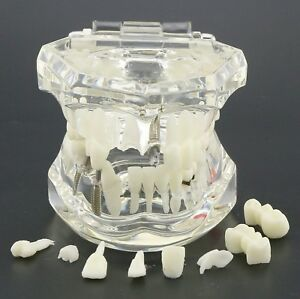 Dental Implant Restoration Model Tooth Disease Demo Typodont Transparent M200101