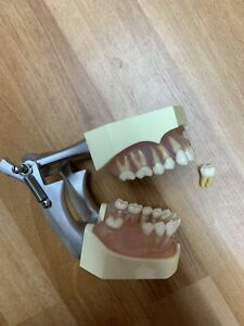 Dentoform Dental Study Model