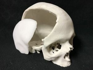 Unusual 3d Printed Life Size Human Skull Model For Surgery Surgical Planning