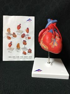 3b Scientific Classic Heart With Bypass 2 Part G05 Model Anatomy