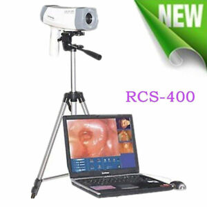Color Electronic Video Vaginoscopy Colposcope Sony Imaging Tripod