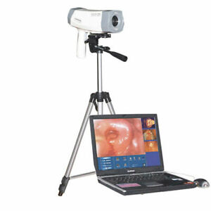 High Resolution Ccd Electronic Colposcope Sony 800 000 Pixels Camera Tripod Sale