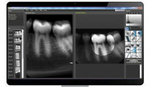 Dental Xray Sensor Size 1 Software Digital Image Sensor