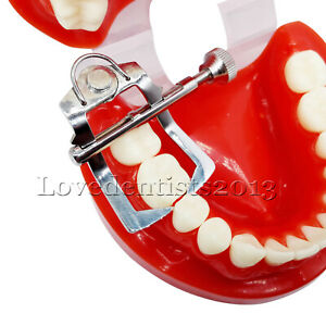 Dental Tooth Divider Retractor Mouth Gag Oral Mouth Opener Separator For Molar