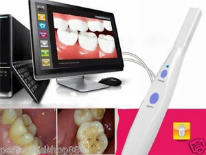 Usa Dentist Dental 5 0 Mp Usb Intraoral Oral Camera Hk790 software Cd Teeth A