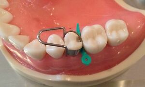 The Amazing U Dental Matrix Bands Retainers Composite Amalgam Matrices
