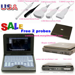 Fda digital ultrasound scanner portable laptop machine 2 probes 3y warranty usa