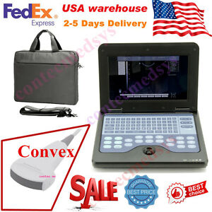 Portable Laptop Machine Digital Ultrasound Scanner 3 5m Convex Probe Cms600p2